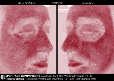 JanMariniTreatmentPhotosMariniBioShield_images_BioShield_SplitFace_1Red_HD