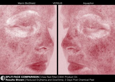 JanMariniTreatmentPhotosMariniBioShield_images_BioShield_SplitFace_2Red_HD