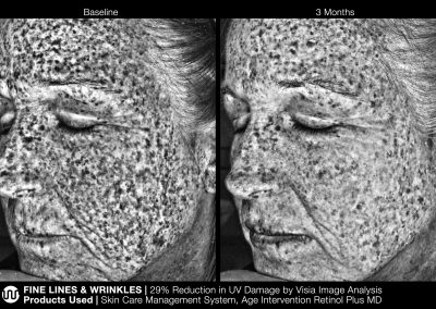 JanMariniTreatmentPhotosWrinkles_images_RetinolPlusMD_1UV_HD